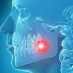 treat wisdom tooth pain