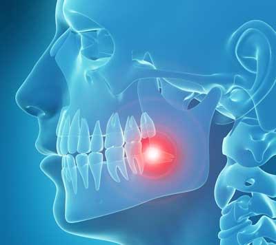 treat wisdom tooth pain