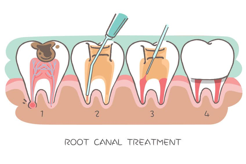 Why You Need A Root Canal